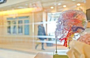 neurostymulacja