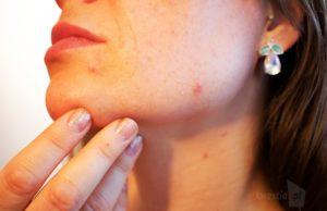 Jak radzić sobie ze skórą podczas mrozu
